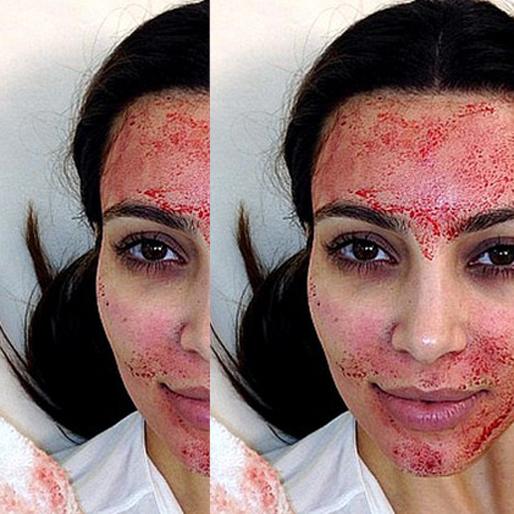 10 Beauty Hacks Less Weird Than a Blood Mask