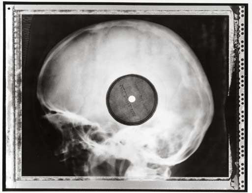 x-ray-records x-ray-record1