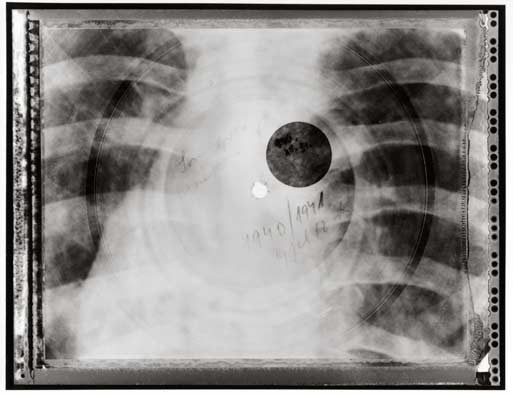 x-ray-records x-ray-record3