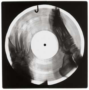 x-ray-records x-ray-record4
