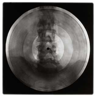 x-ray-records x-ray-record6