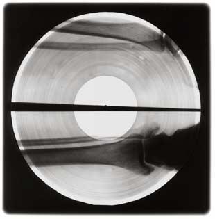 x-ray-records x-ray-record7