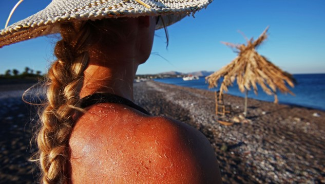 Study Suggests Alcohol Causes Skin to Sunburn Faster