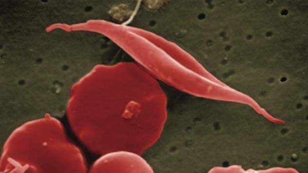 The FDA Has Approved a New Sickle Cell Drug for the First Time in 20 Years