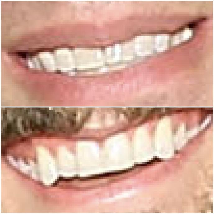 weisman ingebretson teeth.jpg