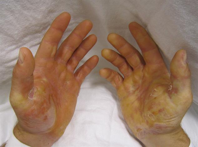 rare-diseases epidermolysis