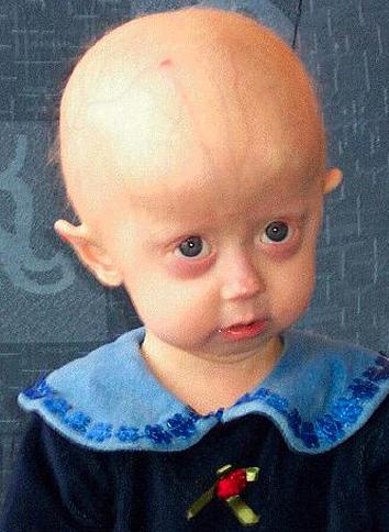 rare-diseases progeria