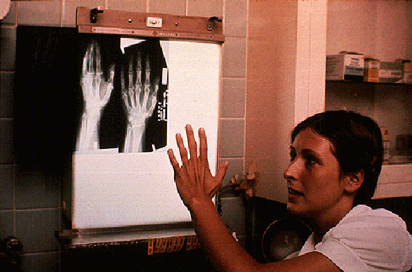 voyager-golden-record hand-x-ray