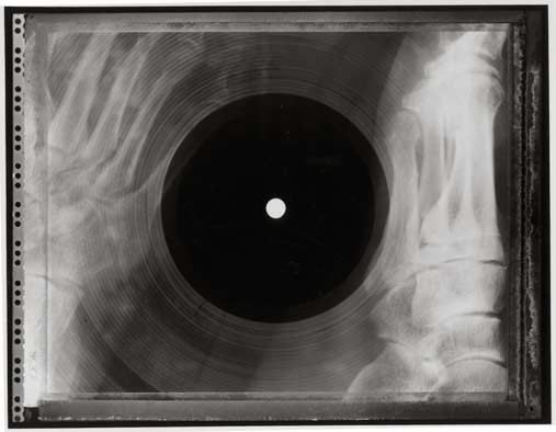 x-ray-records x-ray-record2